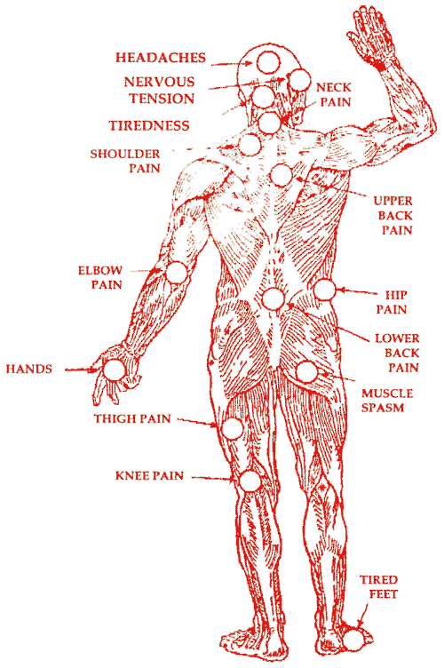 Helpful diagram of bits of people that can feel pain